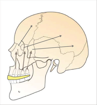 Skull Image showing force of a strike absorbed by mouthguards.